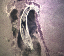 Pomphorhynchus bulbocolli parasites at 100X power
